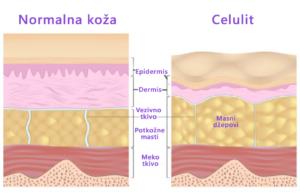 Celulit-ilustracija